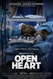 Open Heart Technical Specifications
